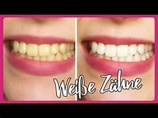 weiße zähne hausmittel wei 223 e z 228 hne mit diesen einfachen hausmitteln gelbe