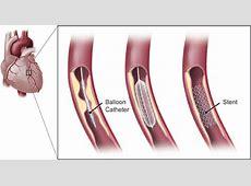 is a heart catheterization dangerous