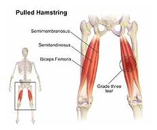 pulled hamstring wikipedia