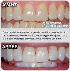 Comment Avoir Des Dents Blanches En Un Rien De Temps