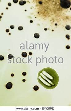 culture nutrient agar petri dish including yeasts and fungi 15629443 alamy