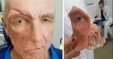 trou peau visage homme cet homme se fait installer une proth 232 se faciale