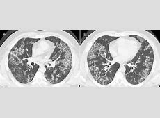 chest ct scan for pneumonia