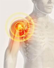 Schmerzen Schulter Ziehen Brust Schulterschmerzen