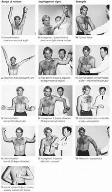 management of shoulder impingement and rotator cuff tears american family physician