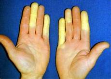 Raynaud S Disease Wikem