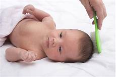Infants Lose Hair