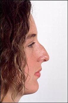 jewish nose anyone has a picture of a jewish nose page 2 stormfront