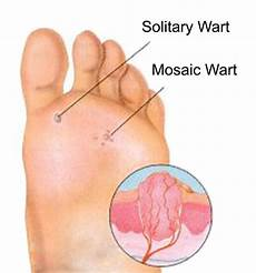 how do you know if a common wart is dying solitary wart and mosaic wart diagram graphic essential oils warts oregano oil oregano