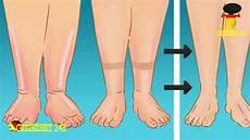 Geschwollene Beine Tipps Gegen Wasser In Den Beinen