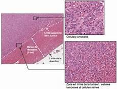 M 233 Tastases H 233 Patiques Des Cancers Du Sein Chb H 244 Pital