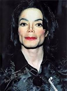 Michael Jackson Als - do you like mj s nose poll results michael jackson fanpop