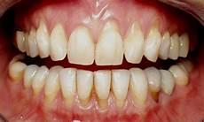 dents qui se déchaussent photos que faire en cas de d 233 chaussement dentaire solutions et