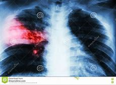 right middle lobe pneumonia causes