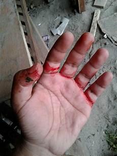 Unduh 950 Gambar Gambar Tangan Berdarah Terbaru Gratis Hd