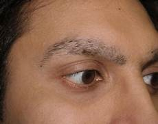 eyebrow hair loss what to do about your thinning eyebrows eyebrows falling out causes hair loss not growing back male stress home remedy treatment