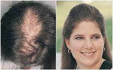 R 233 Sultats De Greffe De Cheveux Femme Groupe M 233 Dical Pai