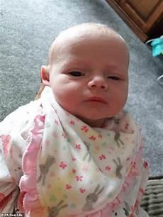 herpes bei babys heartbroken reveals 14 day died