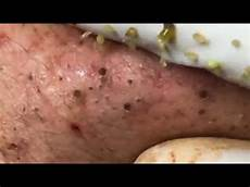 Blackhead Squeeze Popping Pimples Removal Part 10