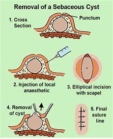Diagram Of Sebaceou Cyst In by Sebaceous Cyst Epidermal Cyst Pictures Causes