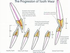 the impact of tooth wear and tooth erosion dr george olstein