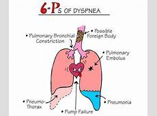 Can Pneumonia Cause Heart Failure-Pneumonia In Chf Patients