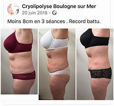 Cryolipolyse R 233 Sultats Avant Apr 232 S Une S 233 Ance