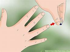 3 ways to cure a skin rash a ring wikihow