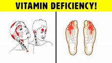 b12 mangel symptome vitamin b12 deficiency symptoms that should never be
