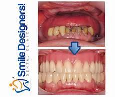 dents qui se déchaussent photos les dents 233 cart 233 es le diast 232 me et les dents du bonheur