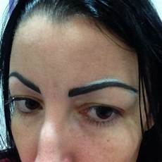 Enlever Tatouage Sourcil Enlever Tatouage Sourcil Cochese
