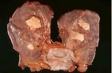 lung cancer photo all about asbestos healthy style foods habits fitness exercises what