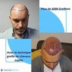 r 233 sultat a 7 mois de la greffe de cheveux encore 5 mois