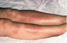 blaue flecken an den beinen sarkoidose granulome in vielen organen pz