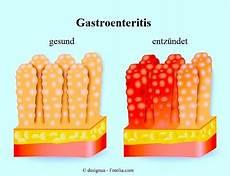 magen darm grippe dauer gastroenteritis oder magen darm grippe symptome dauer essen