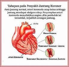 Resty Julandha M S Kep Epidemiologi Penyakit Jantung