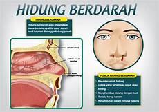 My 2 Cents Hidung Berdarah