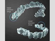 invisalign cost vs braces