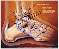 Penyebab Cedera Ankle Dan Pengobatannya