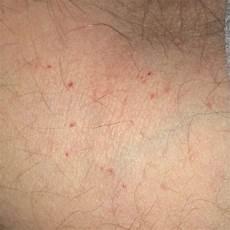 rote punkte auf der haut rote punkte auf oberarm krankheit haut rot