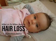 Do Newborns Lose Hair