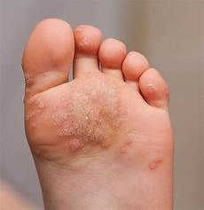 how do you know if a common wart is dying warts and all what you need to know about warts ctd