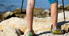 Leg Veins And After Exercise Livestrong