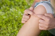 was hilft gegen mückenstiche was wirklich gegen m 252 ckenstiche hilft