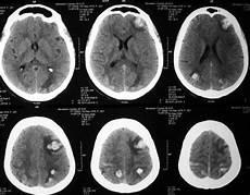 M 233 Tastases Dans Le Cerveau Avec Comp 233 Tence Sur La Sant 233