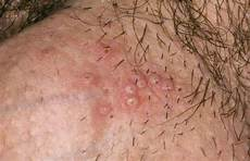 what does bump on pubic hair look like ingrown hair on female privy area prevent treat home remedies