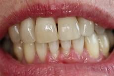 dents qui se déchaussent photos soins des gencives centre dentaire rive sud
