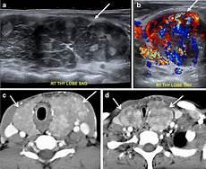 hashimoto thyreoiditis file ultrasound and ct of hashimoto s thyroiditis jpg