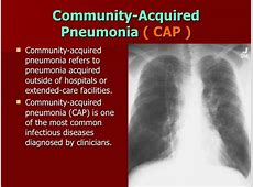 explain the pathophysiology of pneumonia