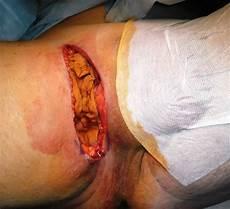 Was Ist Eiter - acn 233 inversa partie droite de l aine traitement plaie